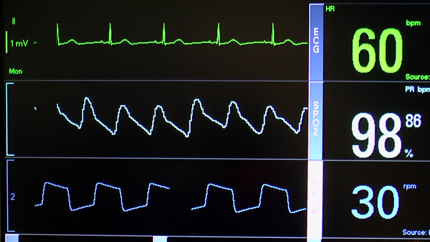Close up of patient monitor displays vital signs - EKG, oxygen saturation (SPO2) respiration and blood pressure.