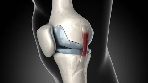 Painful knee arthritis animation