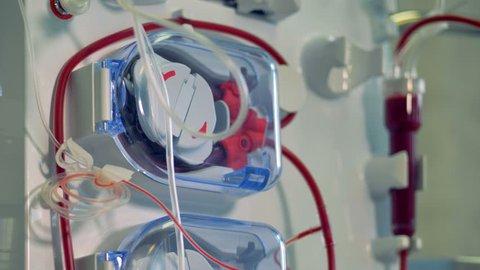 Modern medical equipment for hemodialysis procedure. Modern medical equipment concept.