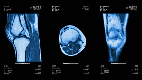 Three knee views of MRI scan. Loopable. Blue. See more options in my portfolio.