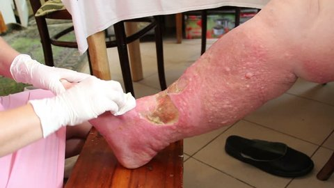 Wound - venous ulcer, stasis ulcers, varicose ulcers, ulcus cruris. 2