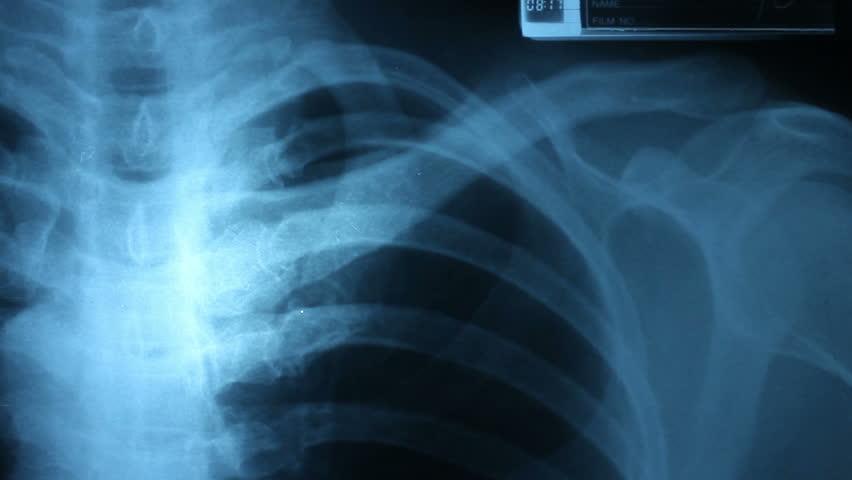 Dolly shot of x-ray image