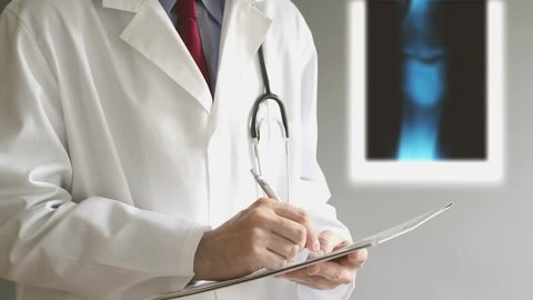 Male Doctor Examining an X-ray Stock Footage Video (100