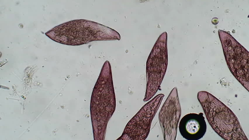 Pink Blepharisma protozoa bustle about in a drop of pond water.  Blepharisma is one of only two truly colored (achlorophyllic) common protozoa, the other being the blue Stentor.