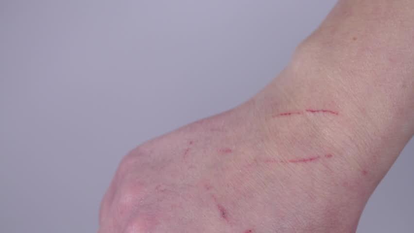 Кусает (царапает) за руку – козни плетут ваши сослуживцы.